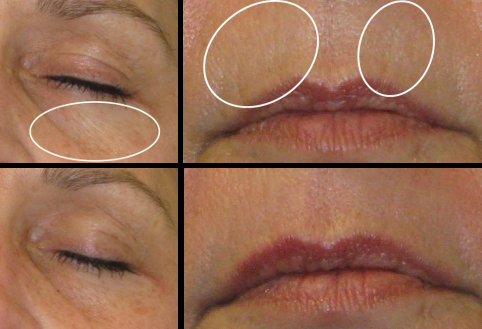 hydrafacials before & after