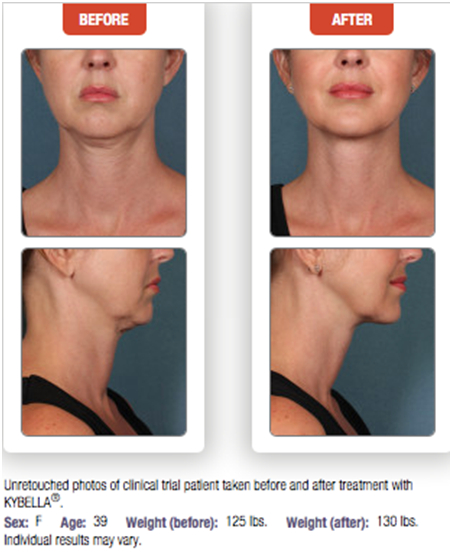 Kybella Double Chin Before After