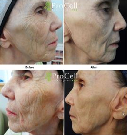 Before and After Microneedling 74 year old