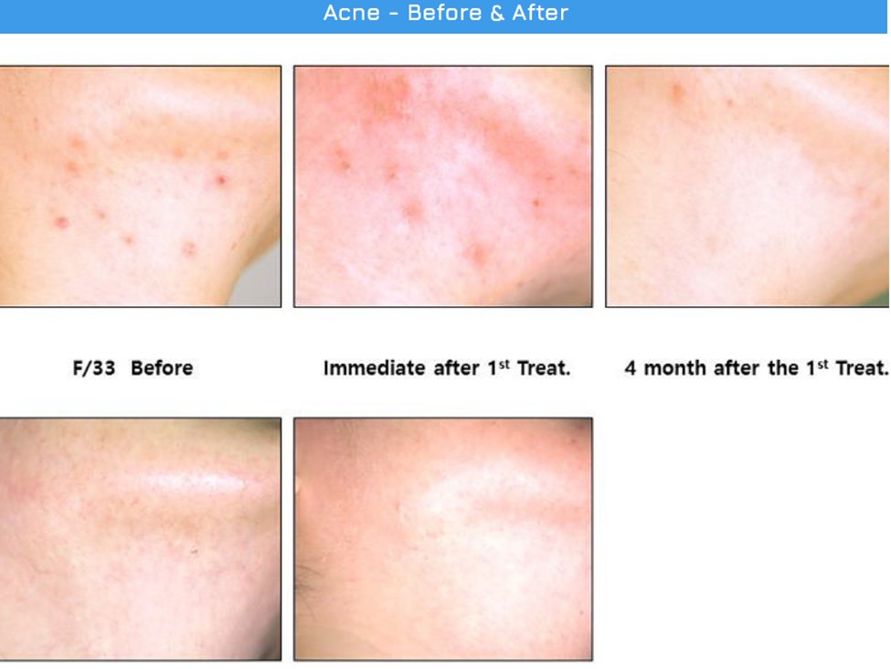 Acne Before After Agnes RF
