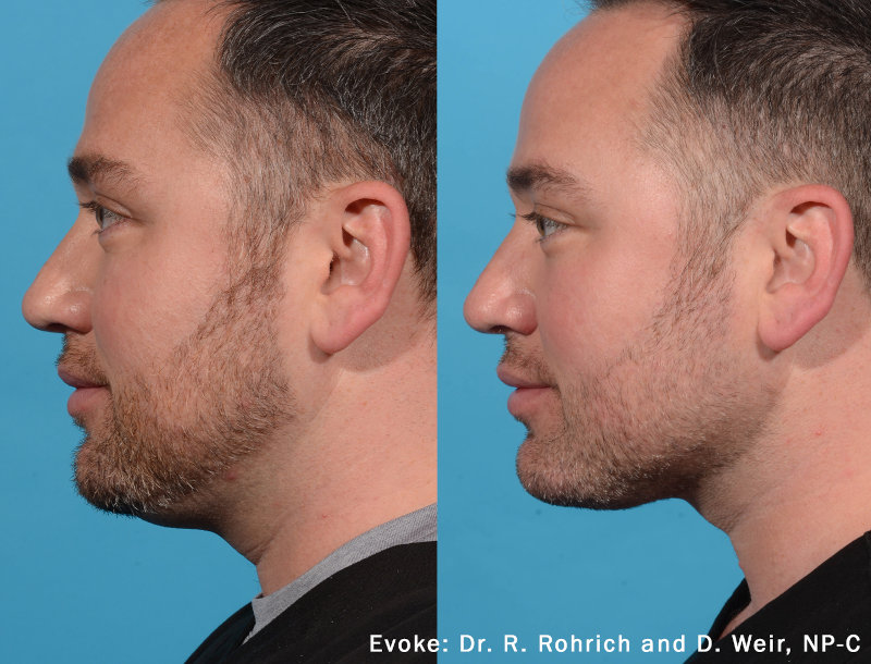 Evoke Before After Neck